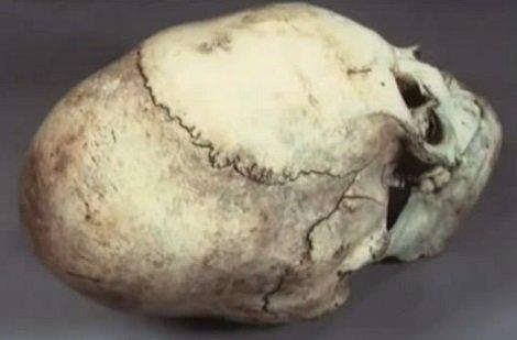 A feltárt koponyacsontokról megállapították, hogy alakja nem mesterséges deformálás következménye.