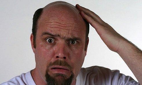 A kopasz férfiak hajlamosabbak a szívbajra
