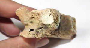Csigolyába ágyazódott bronz nyílhegy egy kurgánban
