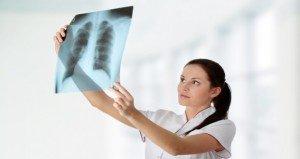 Tüdőszűrés: mikor kötelező, mikor ajánlott?