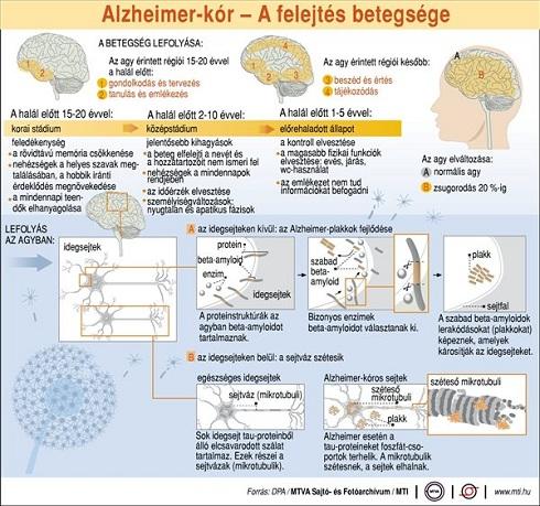 Alzheimer-kór: a felejtés betegsége; a betegség lefolyása; lefolyás az agyban, az agy érintett régiói, ismertető ábra