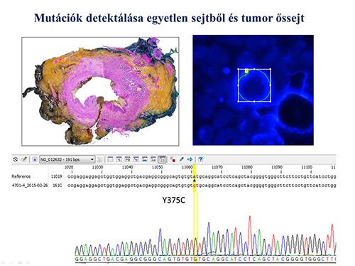 Az egysejt-biopsziával pontosan nyomon követhetőek a tumor őssejtek genetikai változásai